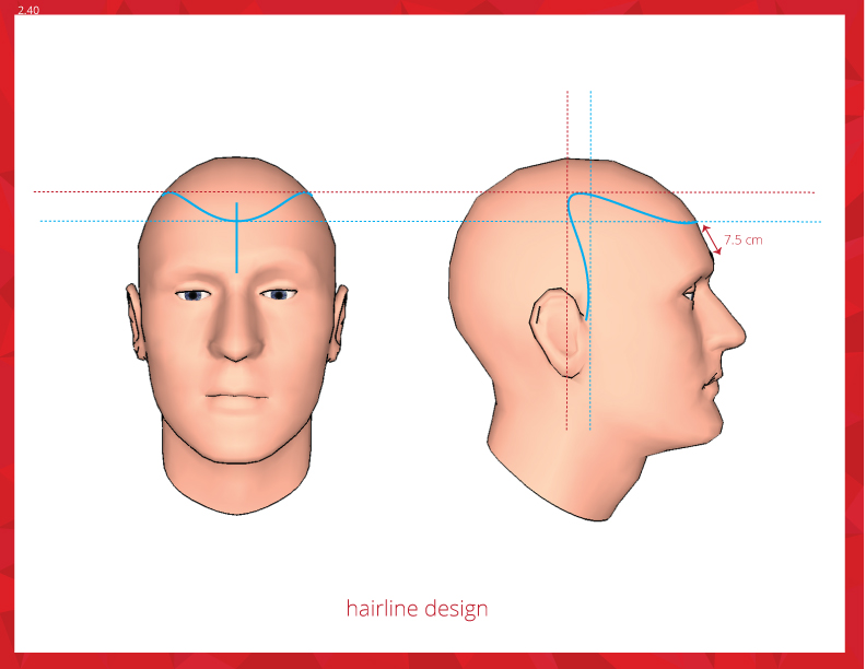 2-45-hairline-design