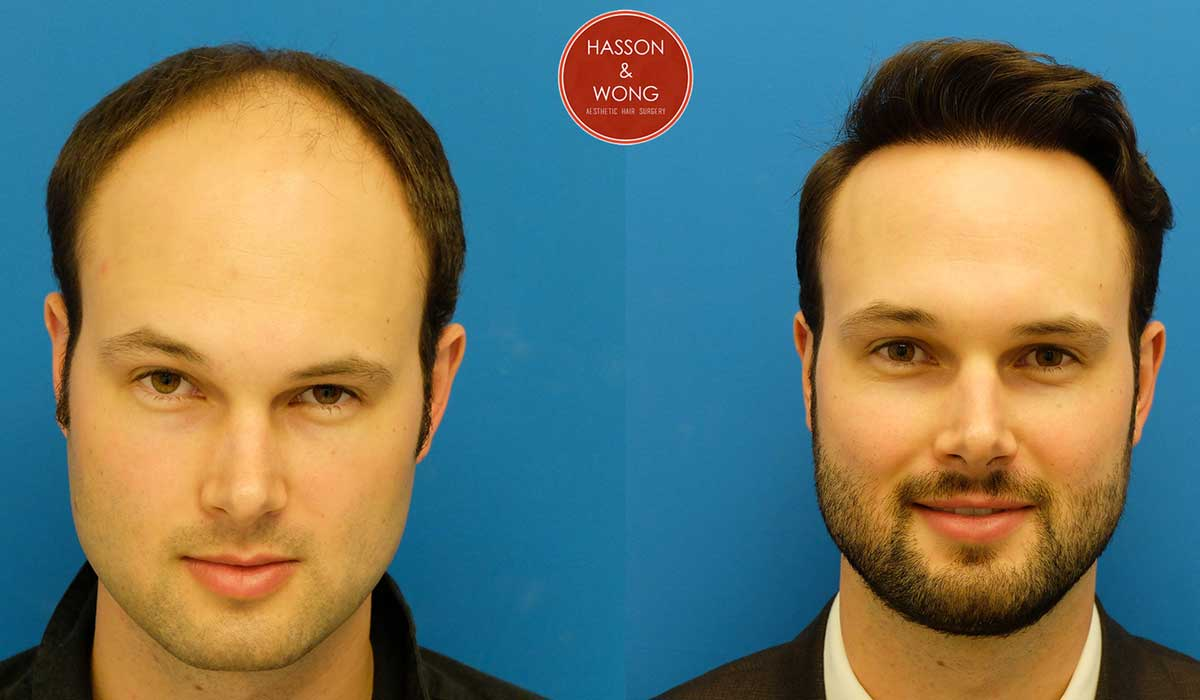 hair transplant cost and coverage