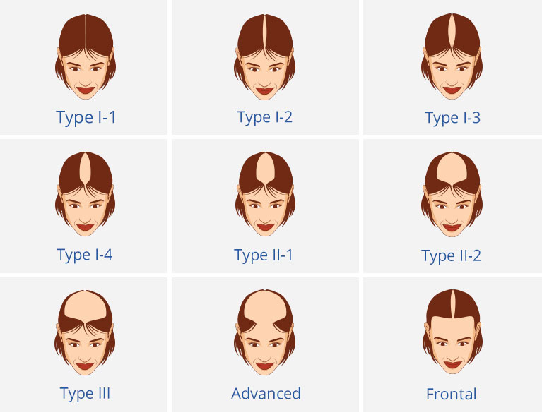 Female Pattern Hair Loss Mesmerizing Hair Growth Patterns