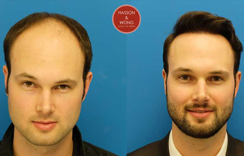 hair transplant patient results