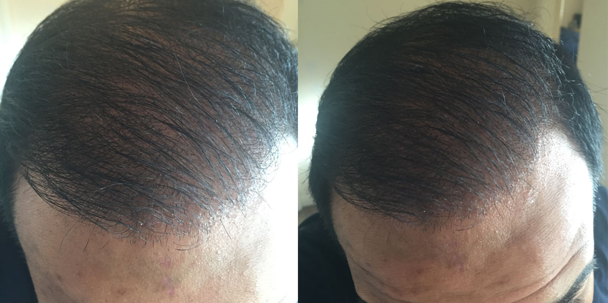 Hair Transplant Surgery Fue After 6 Months
