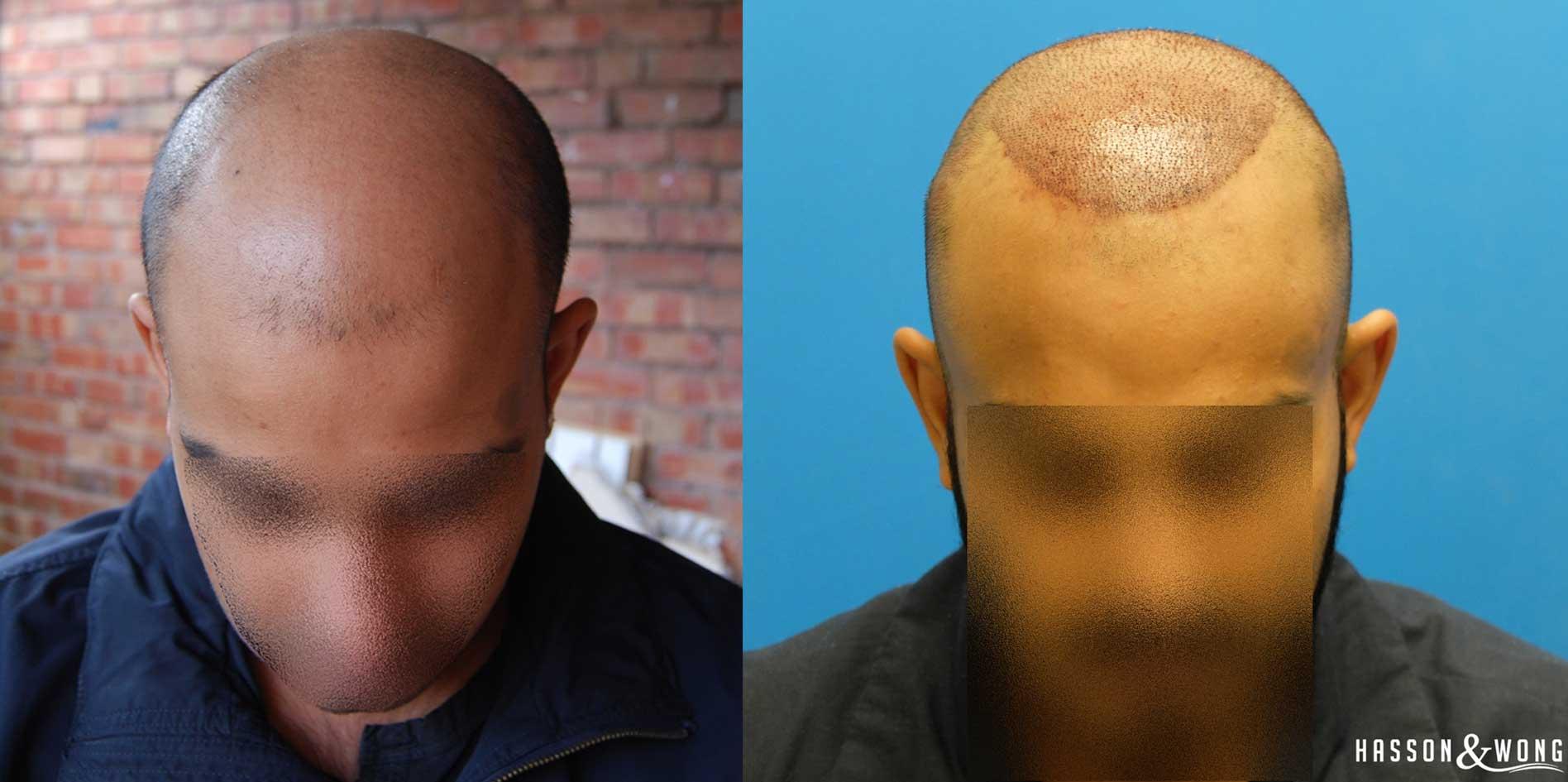 Ex 1 Left Right Ikon Eye Care Hair Transplant