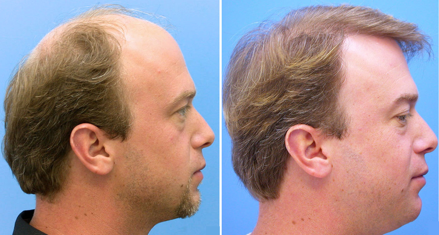 side view of former hair transplant patient of hasson and Wong