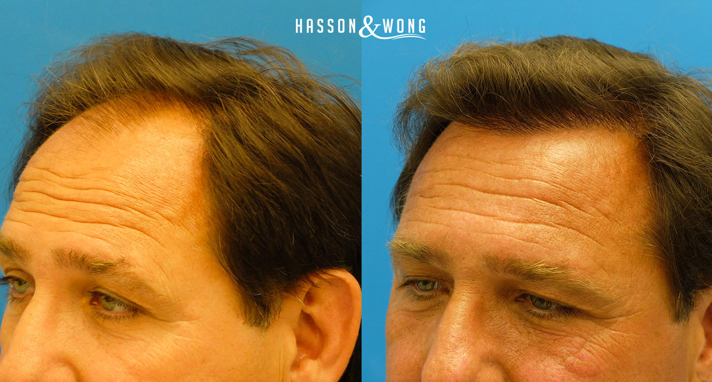 hiarline close up of Hasson hair transplant review patient