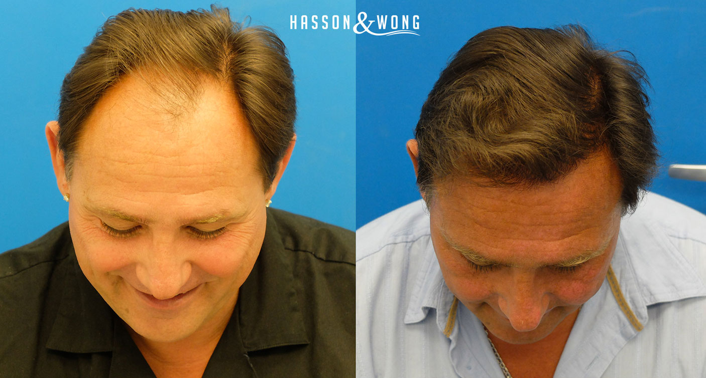 before and after hair transplant of Hasson and Wong patient