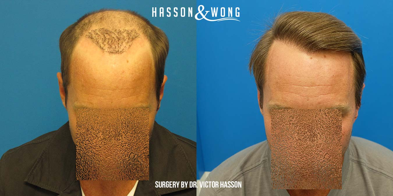 hair transplant repair Hasson and Wong