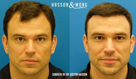 some of our favourite transformations hasson amp wong