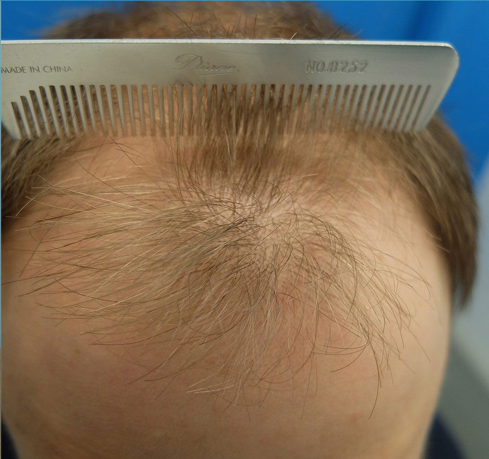 hair transplant patient before surgery