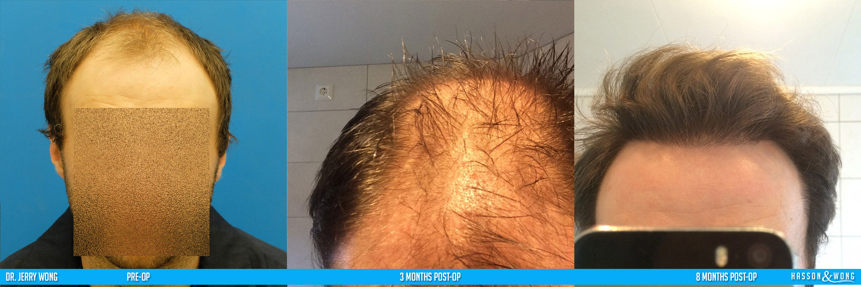 norway hair transplant patient main image