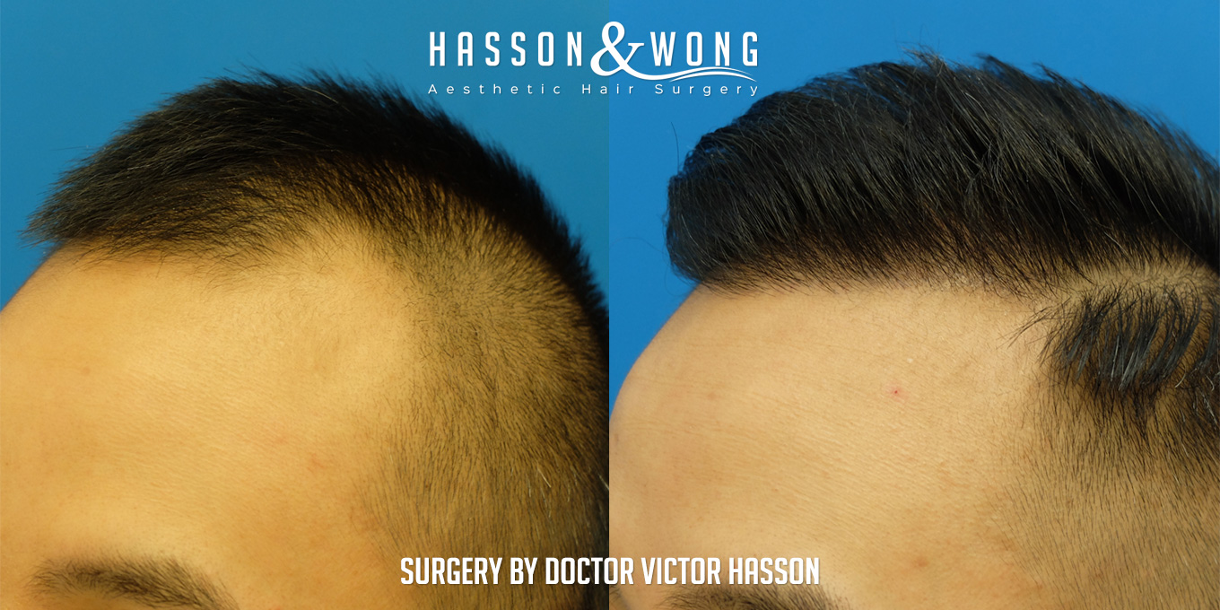 FUE hair transplant patient comparing hairline closeup 2274 grafts