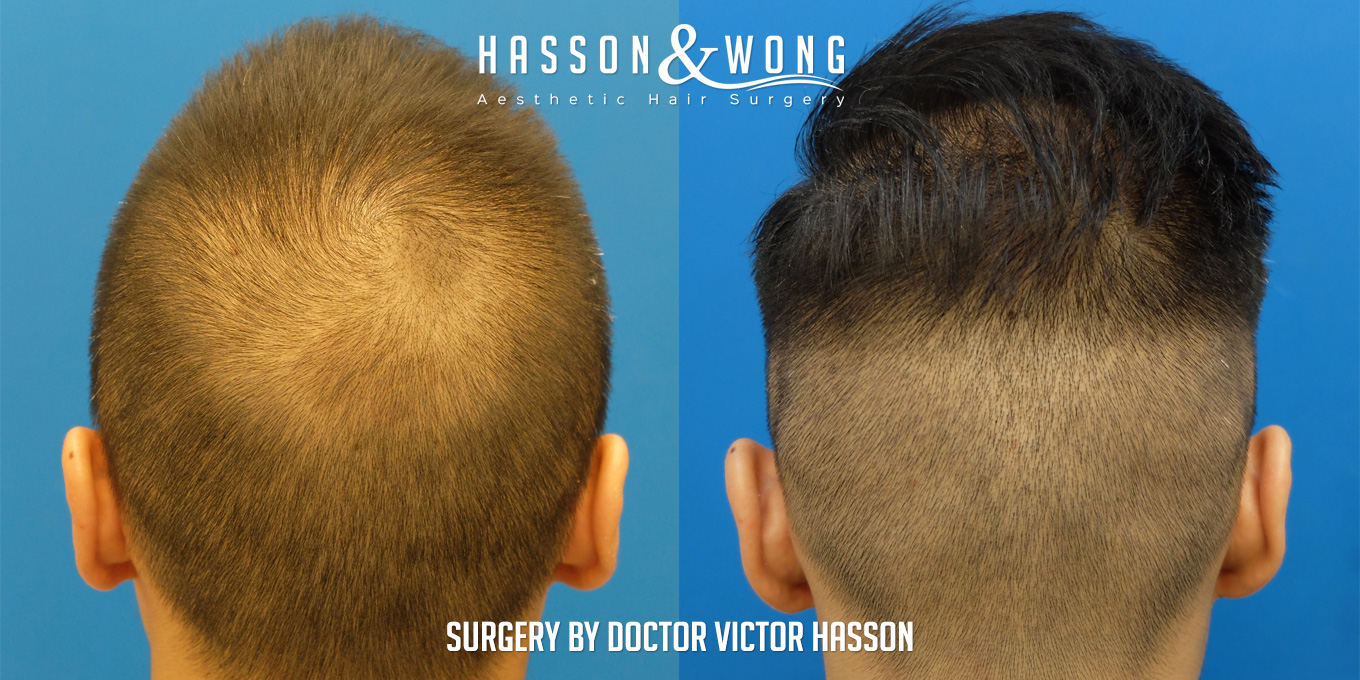 FUE hair transplant comparing back before and after 2274 grafts