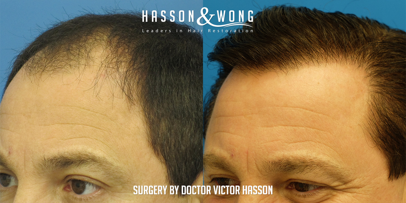 hair transplant after photo of left temple view closeup of patient's head 4 years after hair transplant surgery