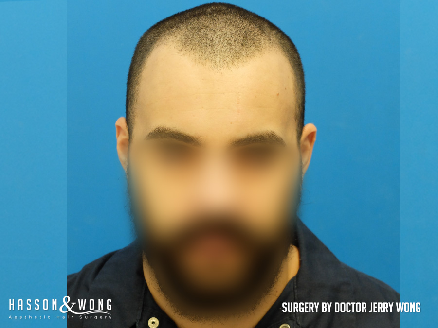 hair transplant patient before FUE surgery of 1267 grafts hairline and front of head