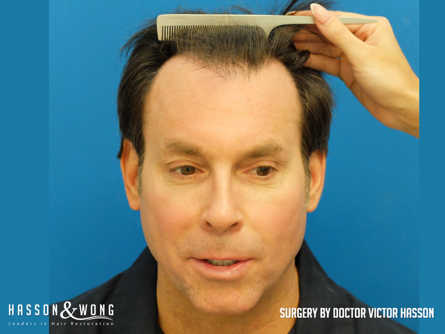 hair transplant patient front view before 4579 grafts