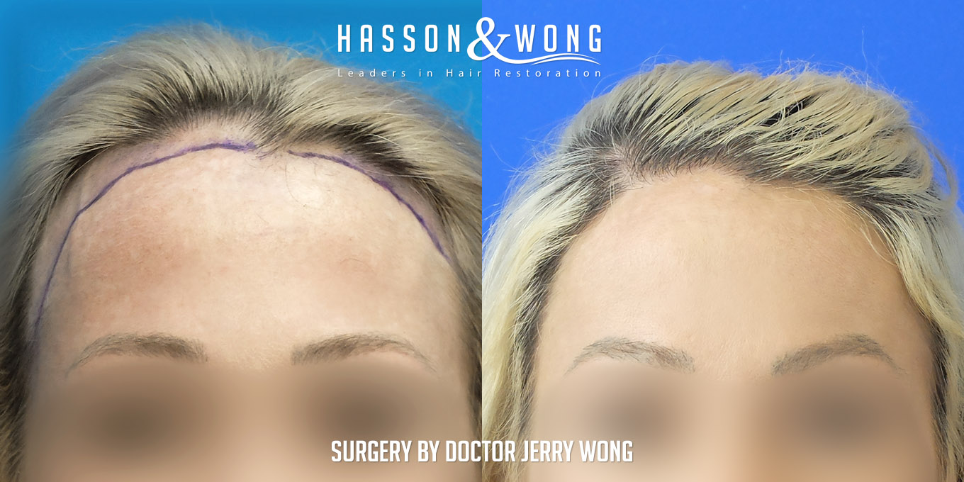 female hair transplant before and after hairline