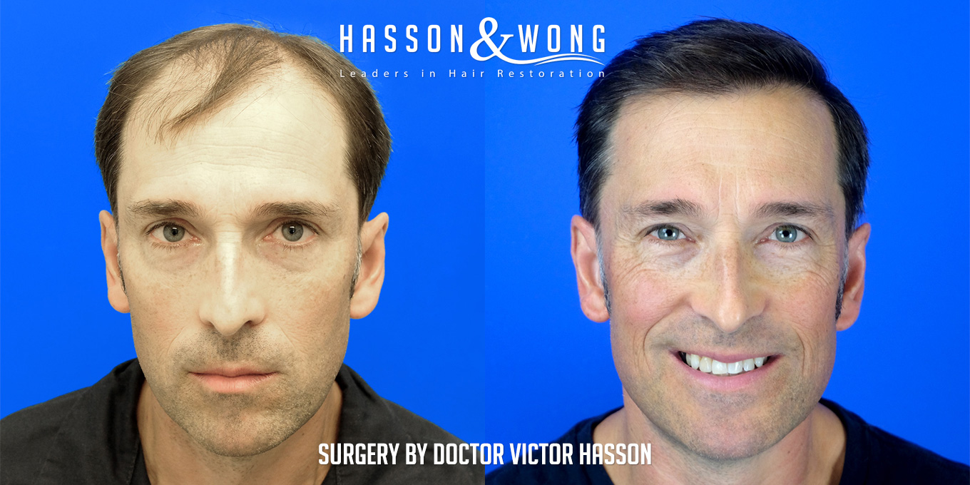 before and after hair transplant surgery of 6514 grafts side by side front view