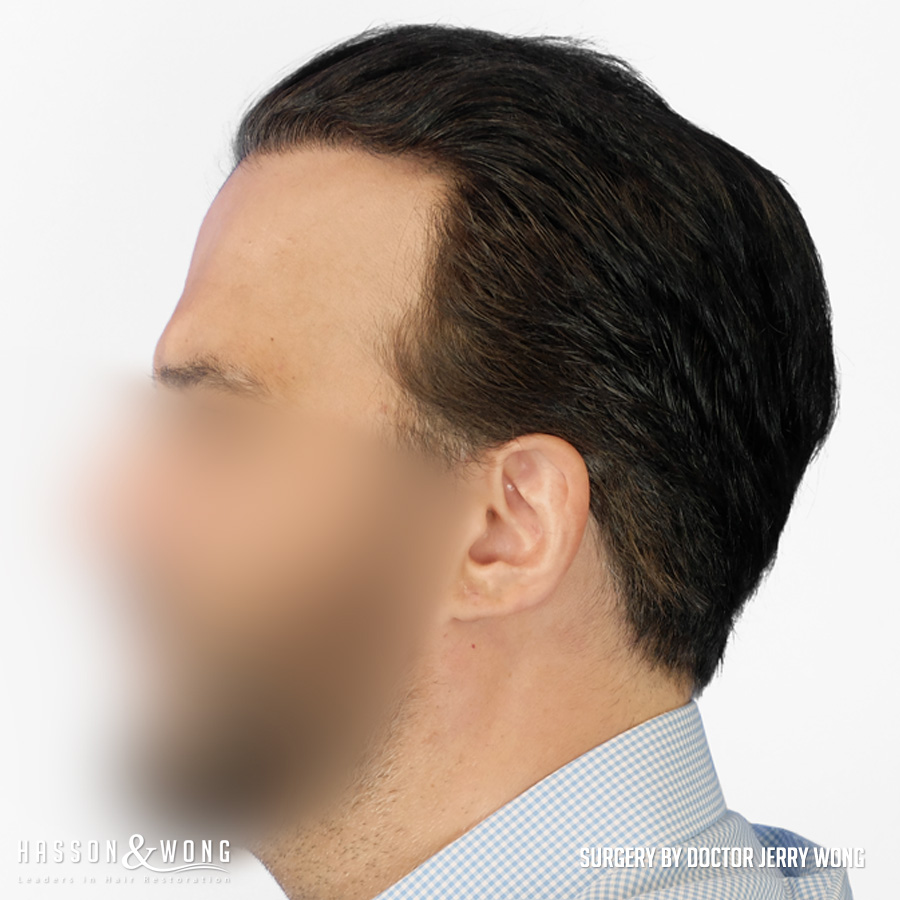 FUT hair transplant patient left side view after 4490 grafts