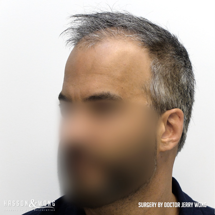 FUT hair transplant patient left temple view before 4490 grafts