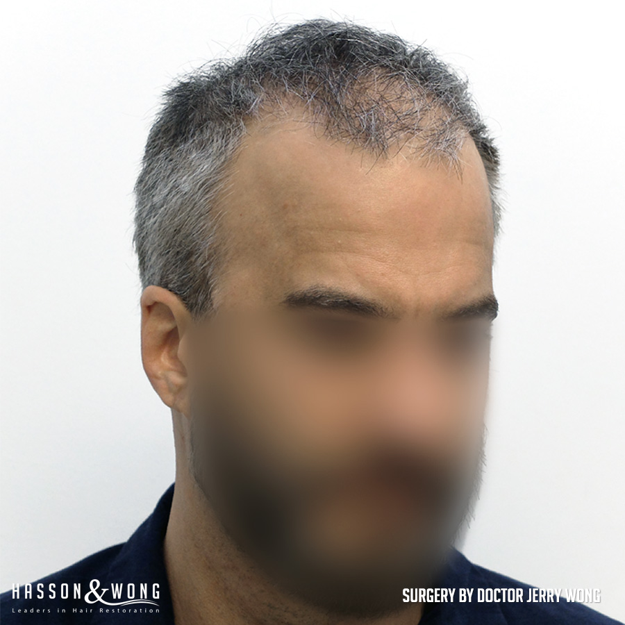 FUT hair transplant patient right temple view before 4490 grafts