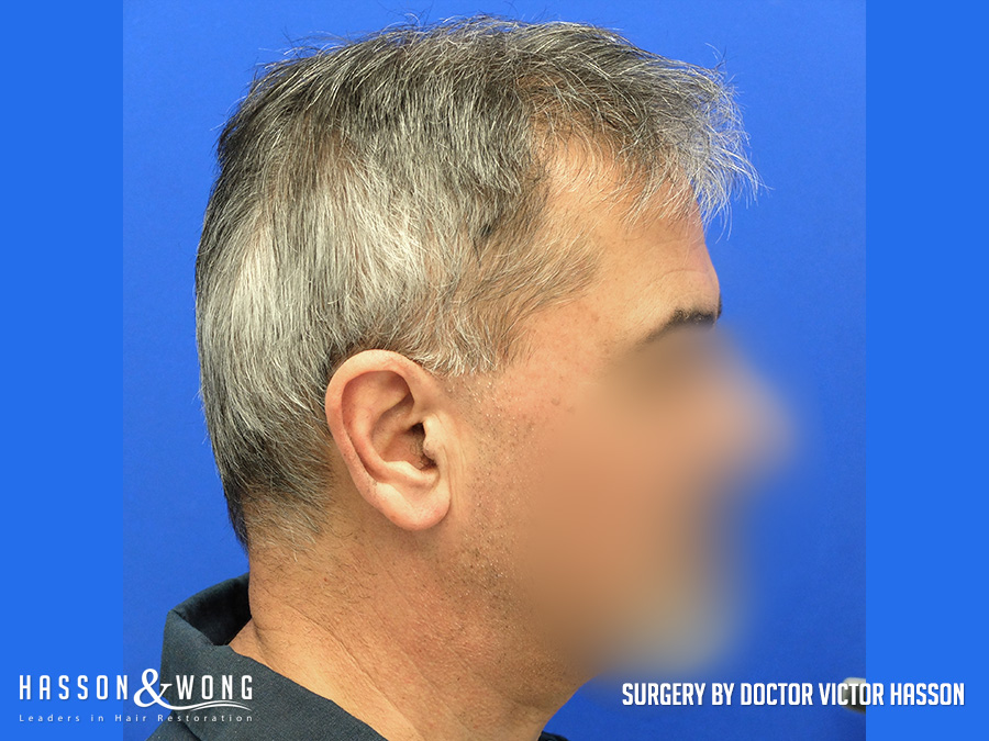 hair transplant before 2806 FUE surgery patient's right side