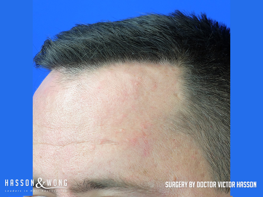 FUE hair transplant left temple after 3,055 grafts