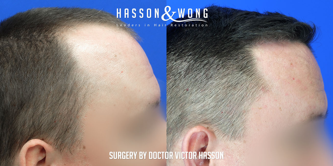 fue hair transplant of 3055 grafts side by side before and after right side of head