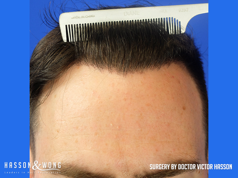 FUE hair transplant after 3,000 graft surgery front hairline closeup