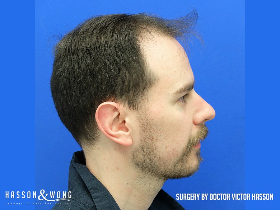 FUE hair transplant before a 3,000 graft surgery top of patient's head